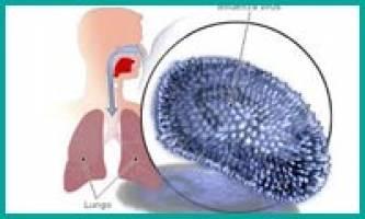 توضیحات وزارت بهداشت در مورد آنفولانزای مرگبار