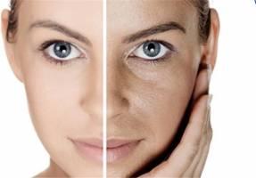 راهکارهای سنتی برای حفظ سلامت پوست در روزهای داغ تابستانی