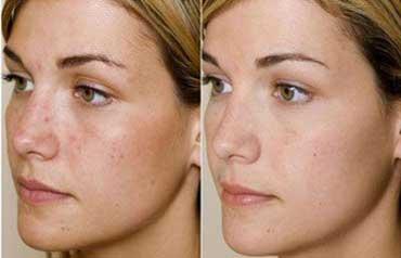 درمان های  گیاهی برای جوش صورت